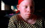 Crainte de pratiques sacrificielles : Les albinos disparaissent de la circulation