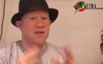 [Vidéo] Les révélations de Bamba Diop Coordonnateur de l'association nationale des albinos du Sénégal