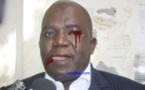 Vidéo de l'Agression du député Oumar Sarr, SGNA du PDS