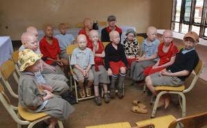 THIES: Le centre de réinsertion des albinos de Sampathé réhabilité