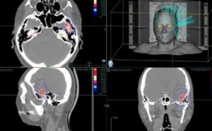VIDEO - CHU de Bordeaux: un robot révolutionnaire pour soigner le cancer