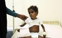 Crise humanitaire: Au Yémen, un enfant meurt toutes les dix minutes(LEXPRESS)